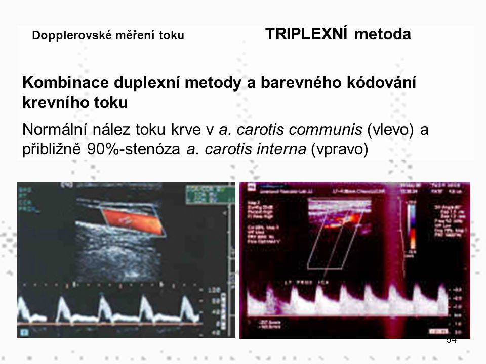 54 Dopplerovské měření toku TRIPLEXNÍ metoda Kombinace duplexní metody a barevného kódování krevního toku Normální nález toku krve v a. carotis commun