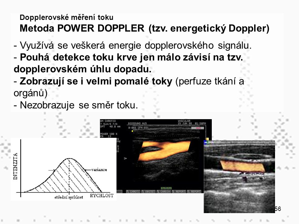 56 Dopplerovské měření toku Metoda POWER DOPPLER (tzv. energetický Doppler) - Využívá se veškerá energie dopplerovského signálu. - Pouhá detekce toku