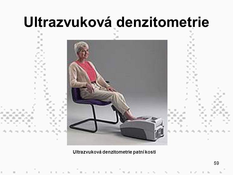59 Ultrazvuková denzitometrie Ultrazvuková denzitometrie patní kosti