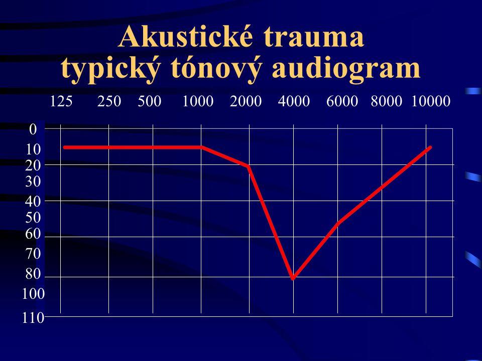 Akustické trauma typický tónový audiogram 125 250 500100020004000 6000 8000 10000 0 20 10 50 60 70 80 100 110 30 40