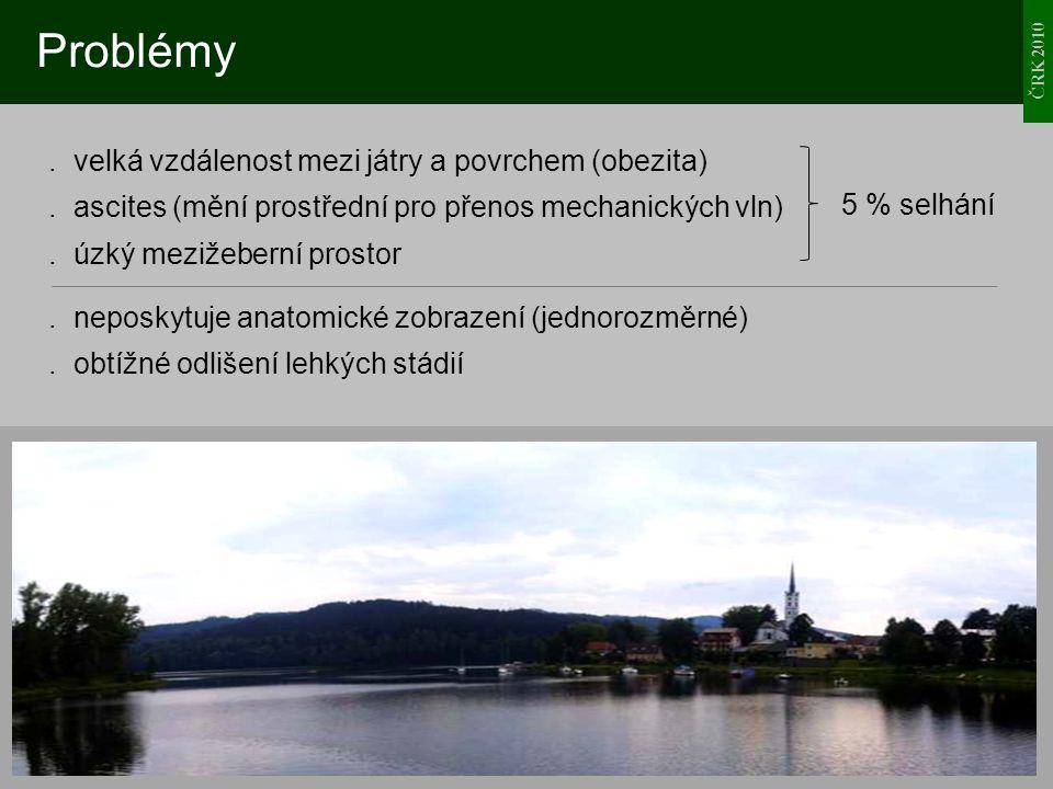 ČRK 2010 Problémy. velká vzdálenost mezi játry a povrchem (obezita). ascites (mění prostřední pro přenos mechanických vln). úzký mezižeberní prostor.