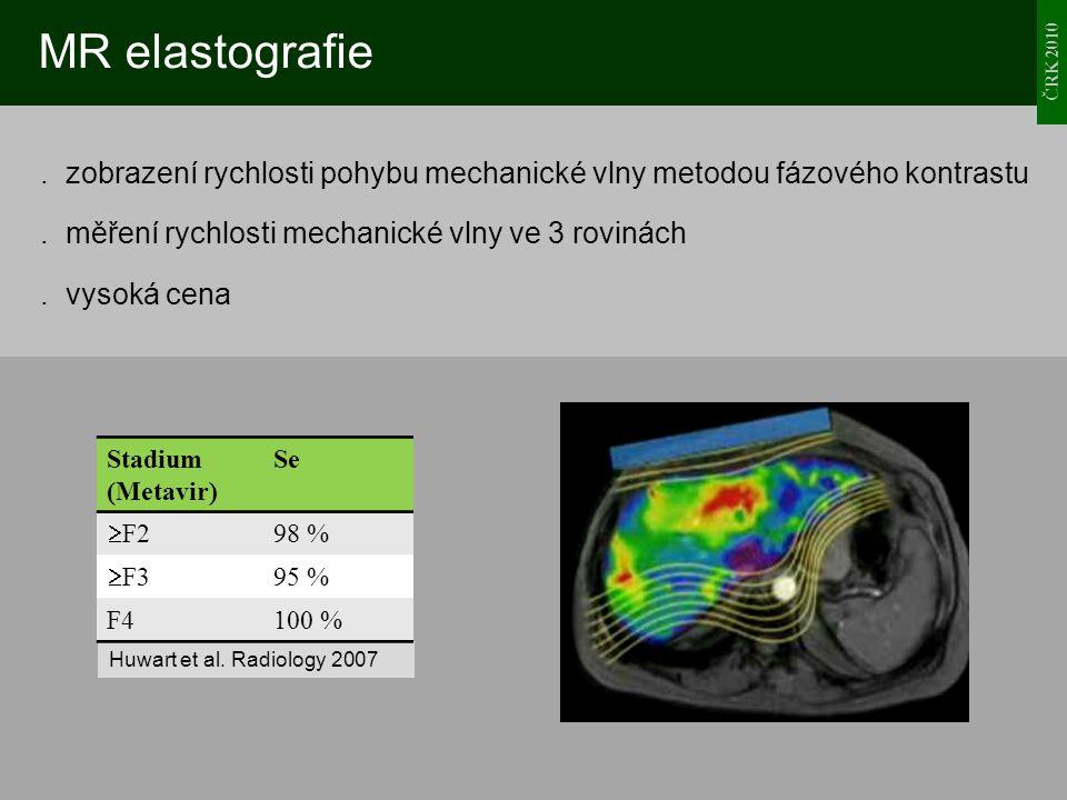 ČRK 2010 MR elastografie. zobrazení rychlosti pohybu mechanické vlny metodou fázového kontrastu. měření rychlosti mechanické vlny ve 3 rovinách. vysok