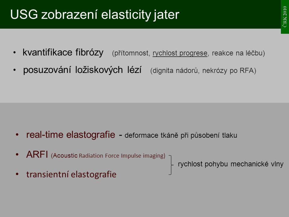 ČRK 2010 USG zobrazení elasticity jater kvantifikace fibrózy (přítomnost, rychlost progrese, reakce na léčbu) posuzování ložiskových lézí (dignita nád