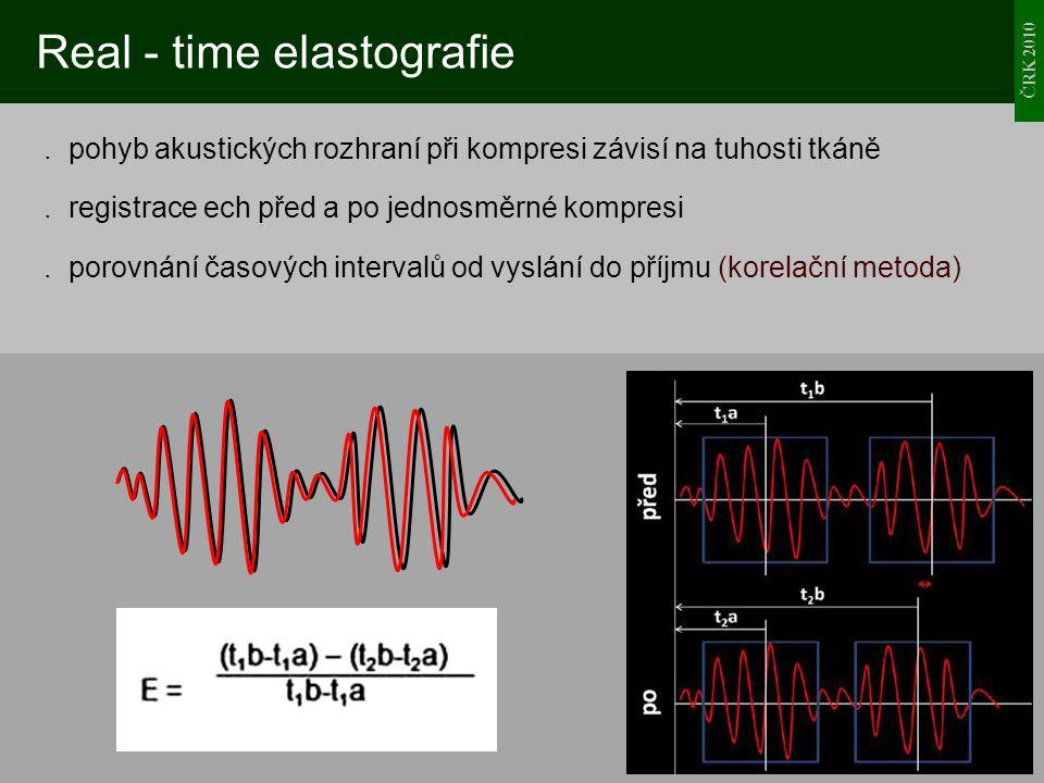 ČRK 2010 Real - time elastografie. pohyb akustických rozhraní při kompresi závisí na tuhosti tkáně. registrace ech před a po jednosměrné kompresi. por