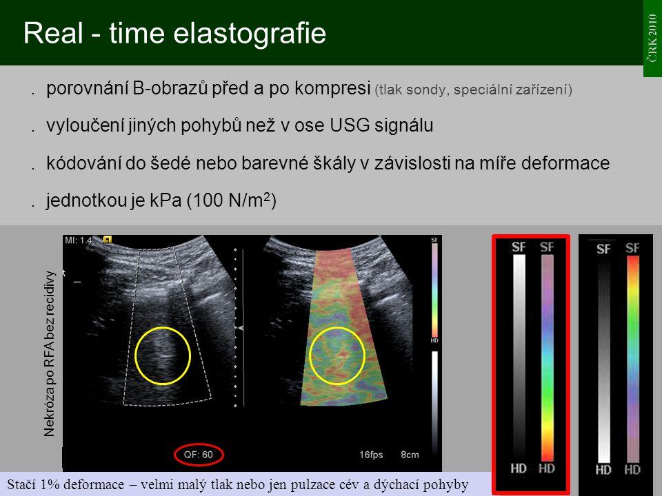 ČRK 2010 Real - time elastografie. porovnání B-obrazů před a po kompresi (tlak sondy, speciální zařízení). vyloučení jiných pohybů než v ose USG signá