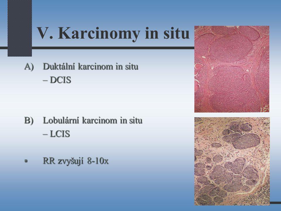 V. Karcinomy in situ A)Duktální karcinom in situ – DCIS B)Lobulární karcinom in situ – LCIS  RR zvyšují 8-10x