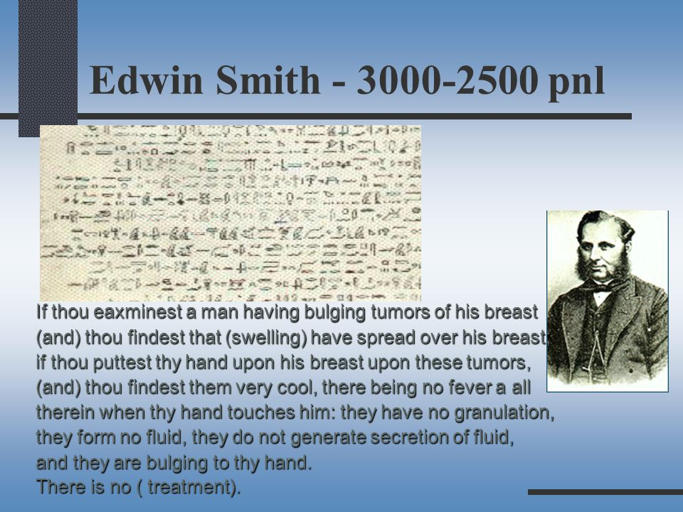 Edwin Smith - 3000-2500 pnl If thou eaxminest a man having bulging tumors of his breast (and) thou findest that (swelling) have spread over his breast