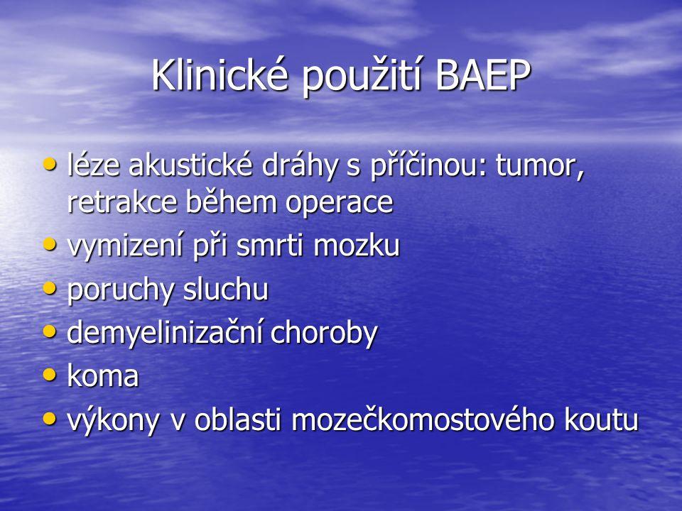 Klinické použití BAEP léze akustické dráhy s příčinou: tumor, retrakce během operace léze akustické dráhy s příčinou: tumor, retrakce během operace vy