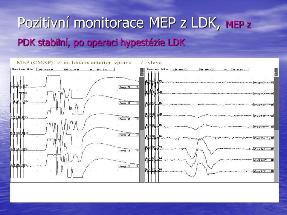 Pozitivní monitorace MEP z LDK, MEP z PDK stabilní, po operaci hypestézie LDK