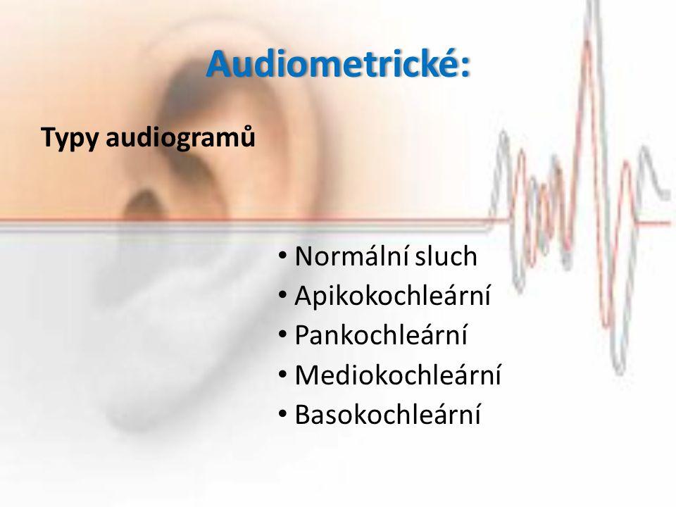 Audiometrické: Typy audiogramů Normální sluch Apikokochleární Pankochleární Mediokochleární Basokochleární