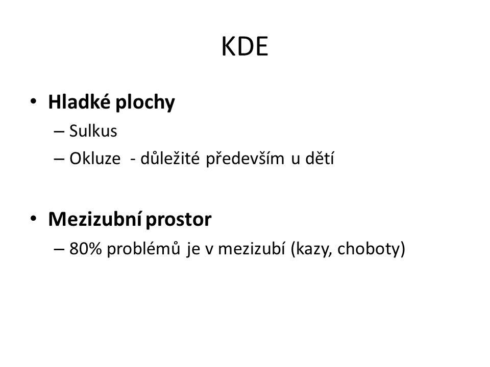KDE Hladké plochy – Sulkus – Okluze - důležité především u dětí Mezizubní prostor – 80% problémů je v mezizubí (kazy, choboty)