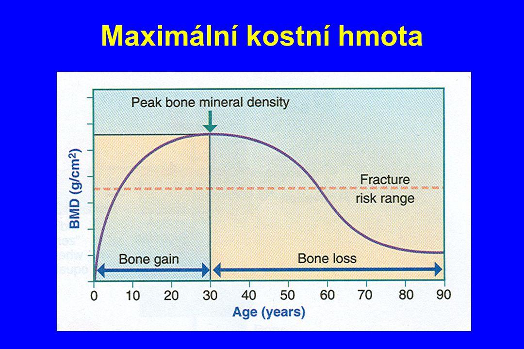 Maximální kostní hmota