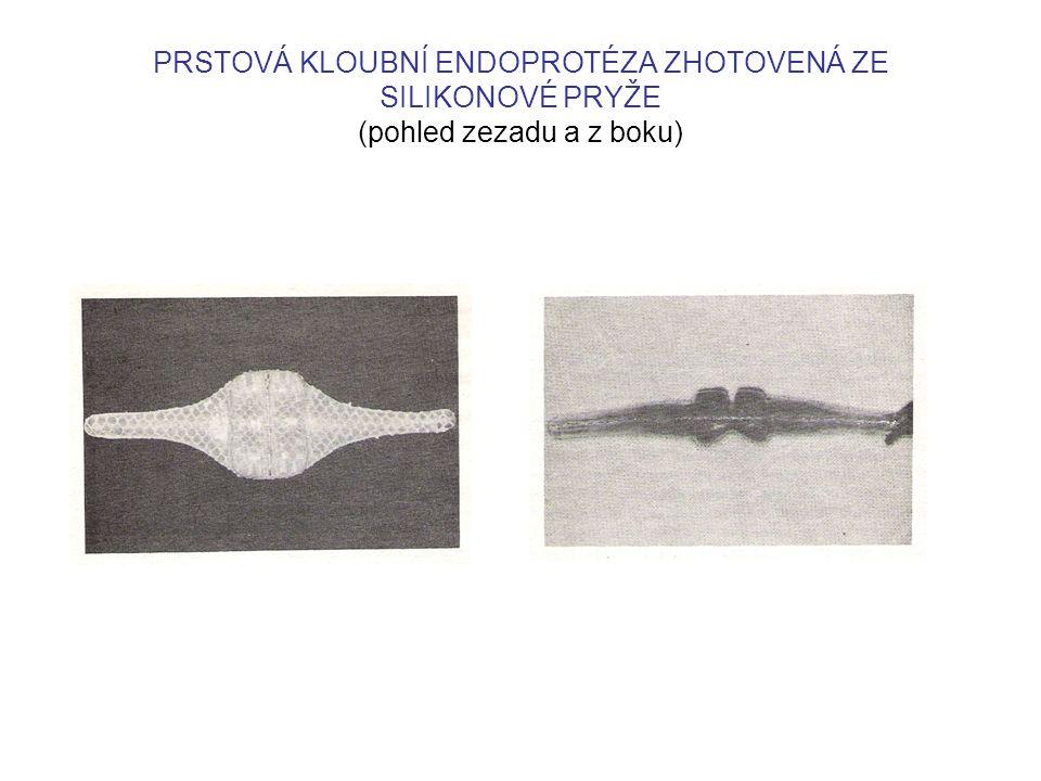 PRSTOVÁ KLOUBNÍ ENDOPROTÉZA ZHOTOVENÁ ZE SILIKONOVÉ PRYŽE (pohled zezadu a z boku)