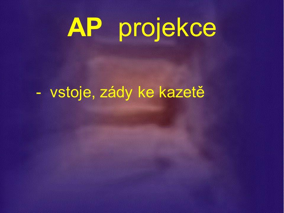 P r o j e k c e : - AP snímek vstoje - bočný snímek vstoje - obě šikmé projekce - dynamické snímky vsedě ( předklon, záklon ) - Fergusonova projekce