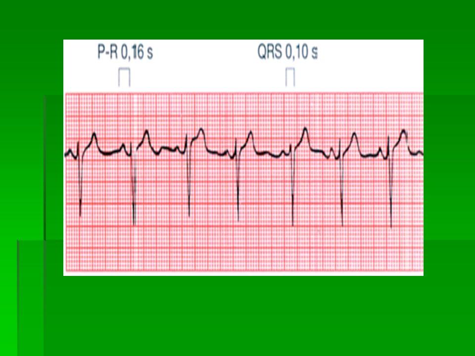 Rytmus  Přítomnost vlny P – sinusový rytmus – vzruch se šíří ze sinoatriálního uzlu – fyziologický / správný/ rytmus  Nepřítomnost vlny P – arytmie – například nejčastěji fibrilace síní  Pravidelnost vzdálenosti jednotlivých komplexů / R-R / - pravidelné intervaly – sinusový rytmus.