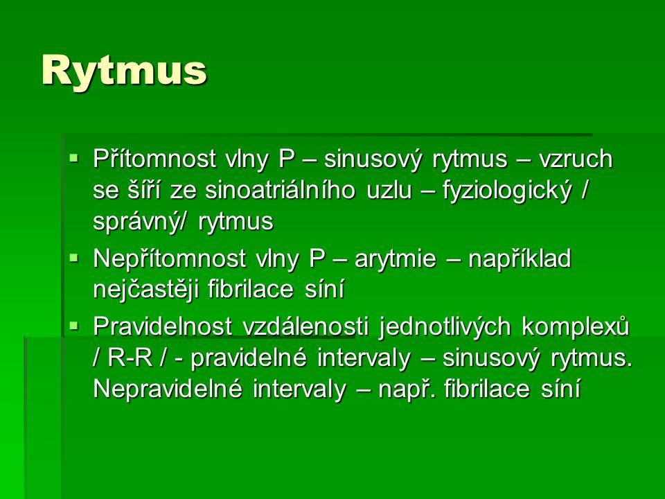 Rytmus  Přítomnost vlny P – sinusový rytmus – vzruch se šíří ze sinoatriálního uzlu – fyziologický / správný/ rytmus  Nepřítomnost vlny P – arytmie