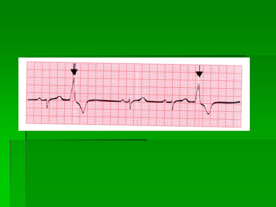 Hodnocení morfologie / tvaru / EKG křivky  Hodnocení zejména úseku ST a vlny T  Elevace / vzestup / ST úseku – může svědčit pro akutní infarkt  Deprese /pokles/ úseku ST může také svědčit pro infarkt nebo alespoň ischemii / nedokrvení / myokardu  Negativní vlna T – může svědčit také pro ischemii nebo infarkt myokardu