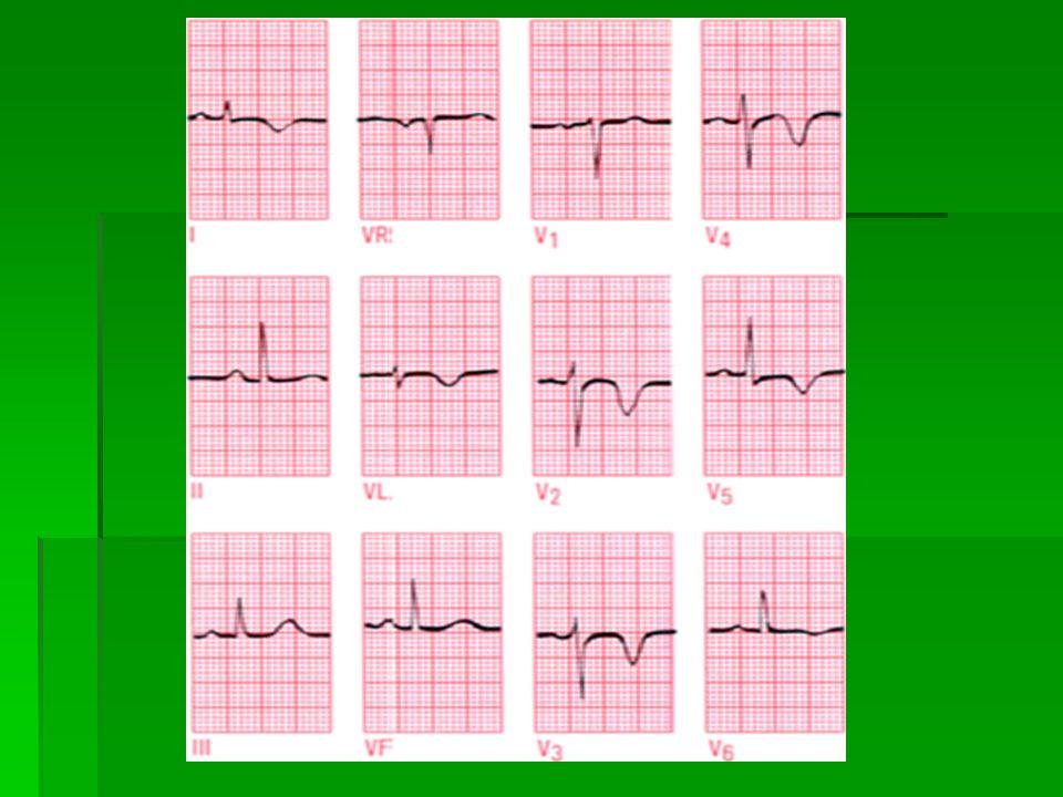 """Nejzávažnější arytmie  Takzvané maligní arytmie  Pacient ztrácí vědomí, nehmatný puls, zástava dechu a oběhu  Asystolie – """" rovná čára """" nebo ojedinělý komplex  Komorová tachykardie  Fibrilace komor"""