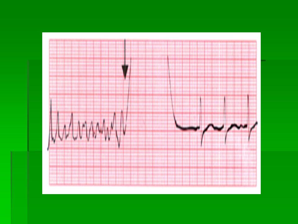 Hodnocení EKG křivky na monitoru  Frekvence  Přítomnost vlny P  Pravidelnost x nepravidelnost  Většinou nelze hodnotit přítomnost ložiskových změn / např.infarktu/ z jednoho svodu