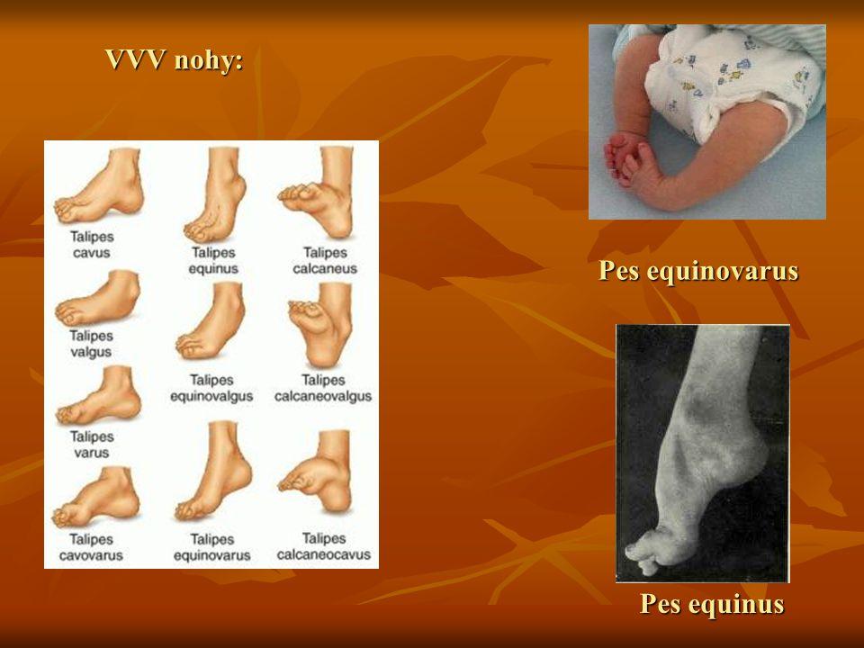 VVV nohy: Pes equinovarus Pes equinus