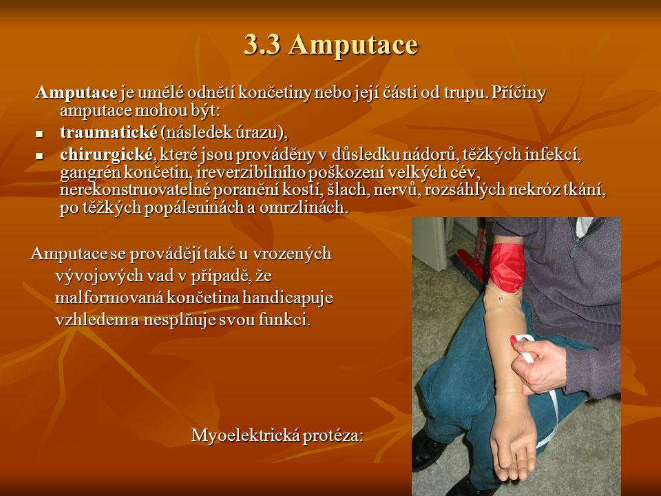 3.3 Amputace Amputace je umělé odnětí končetiny nebo její části od trupu. Příčiny amputace mohou být: traumatické (následek úrazu), traumatické (násle