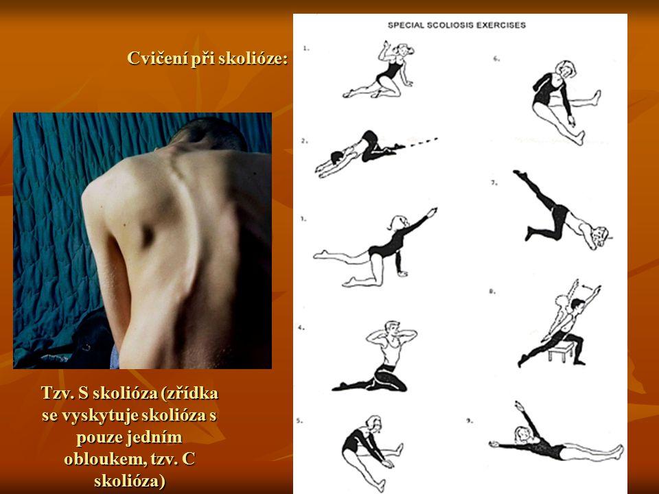 Cvičení při skolióze: Tzv. S skolióza (zřídka se vyskytuje skolióza s pouze jedním obloukem, tzv. C skolióza)
