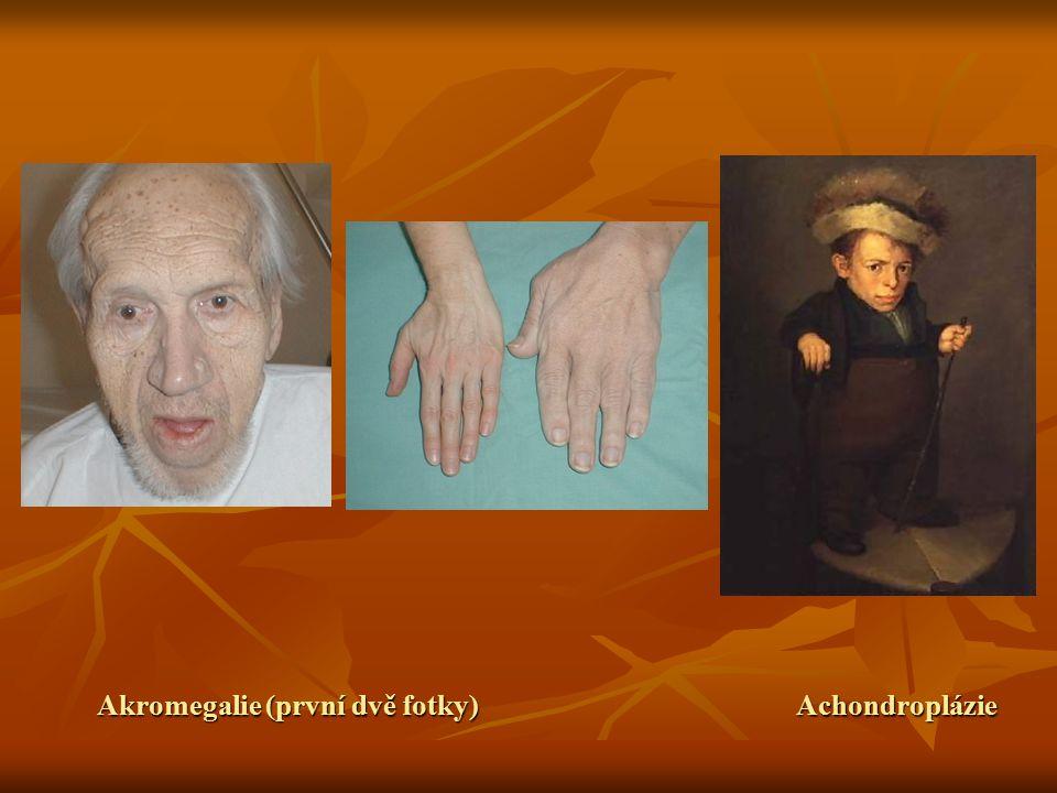 Akromegalie (první dvě fotky) Achondroplázie
