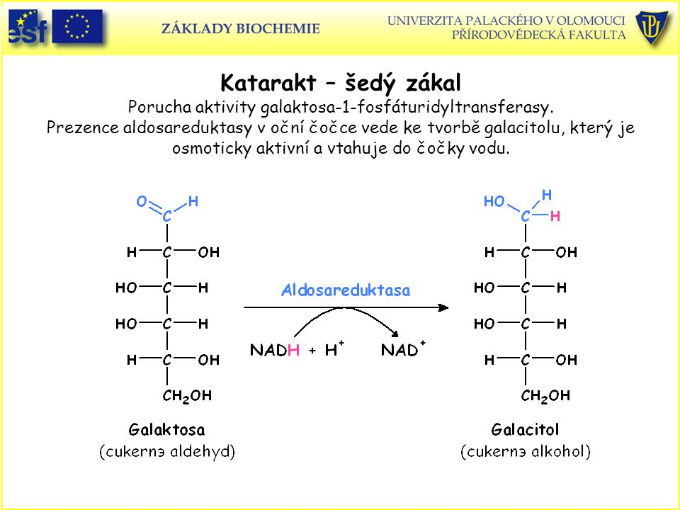 Katarakt – šedý zákal Porucha aktivity galaktosa-1-fosfáturidyltransferasy. Prezence aldosareduktasy v oční čočce vede ke tvorbě galacitolu, který je