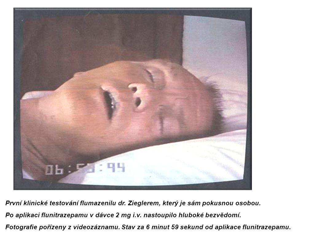 První klinické testování flumazenilu dr. Zieglerem, který je sám pokusnou osobou. Po aplikaci flunitrazepamu v dávce 2 mg i.v. nastoupilo hluboké bezv