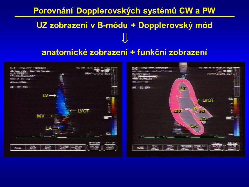 Porovnání Dopplerovských systémů CW a PW UZ zobrazení v B-módu + Dopplerovský mód anatomické zobrazení + funkční zobrazení