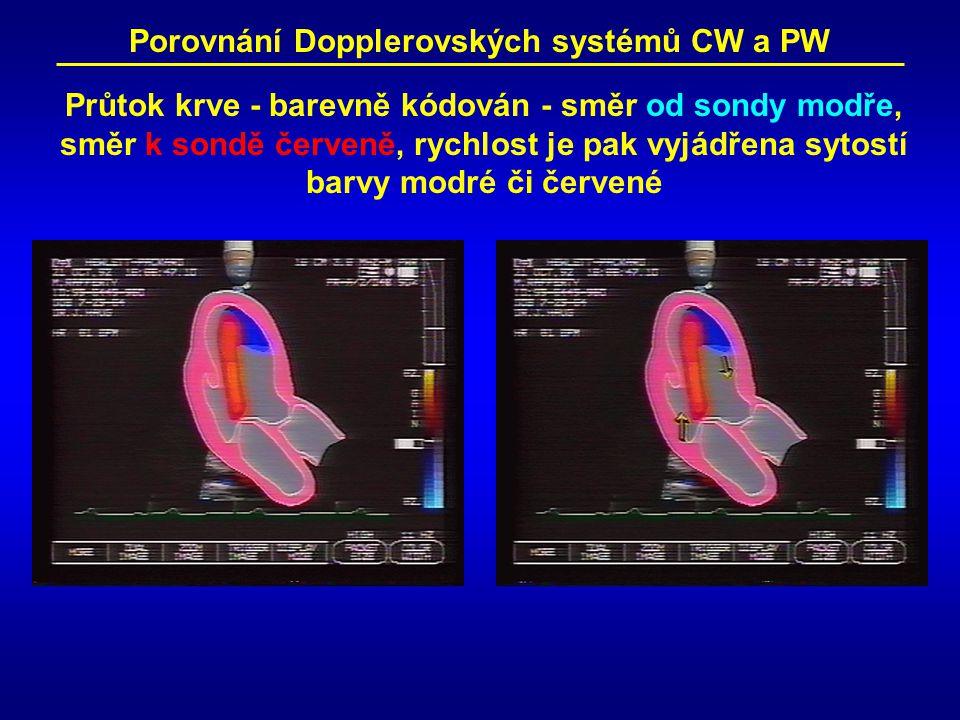 Porovnání Dopplerovských systémů CW a PW Průtok krve - barevně kódován - směr od sondy modře, směr k sondě červeně, rychlost je pak vyjádřena sytostí barvy modré či červené