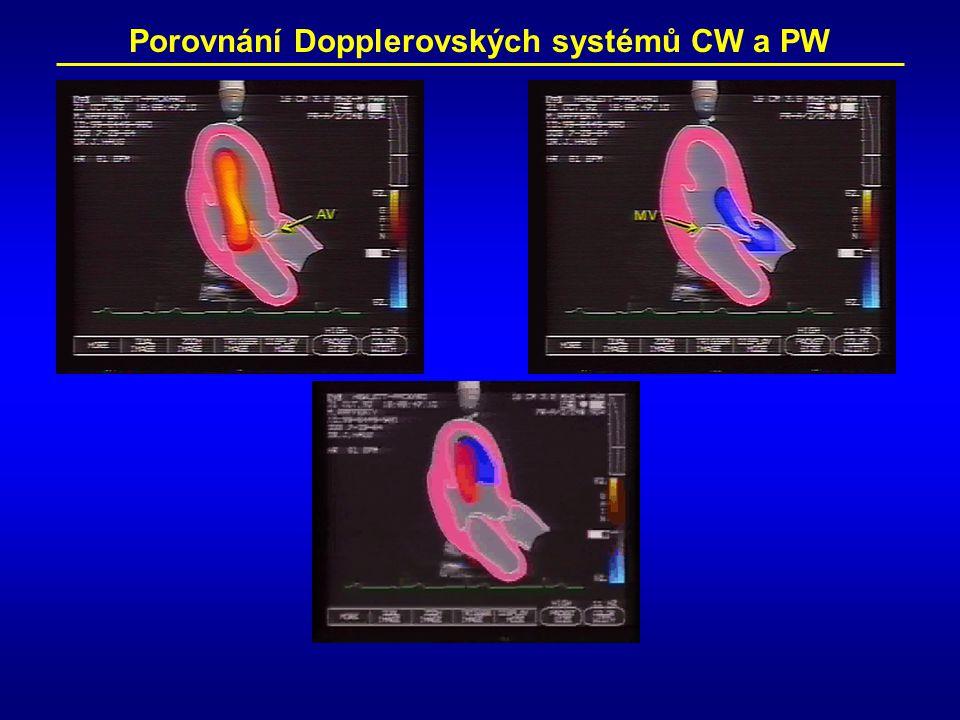 Porovnání Dopplerovských systémů CW a PW
