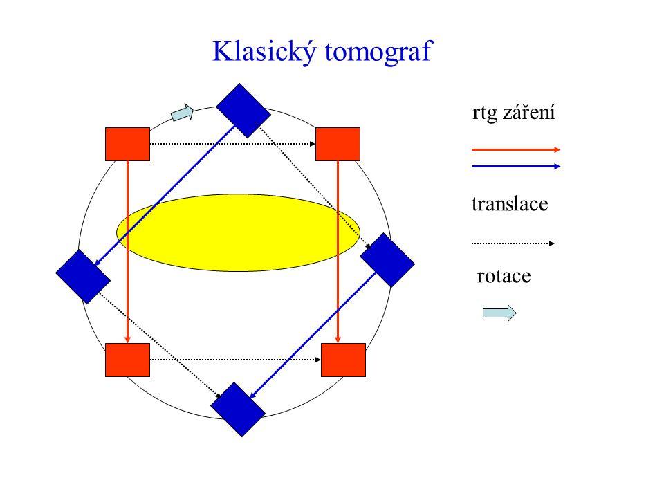 Klasický tomograf rtg záření translace rotace