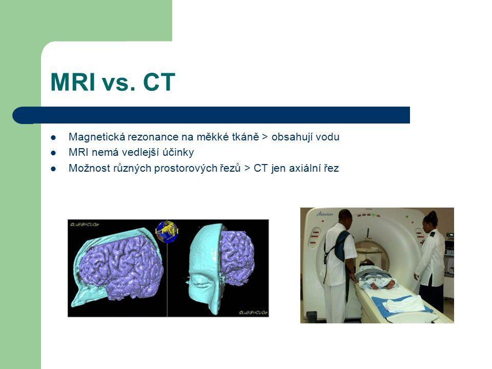 MRI vs. CT Magnetická rezonance na měkké tkáně > obsahují vodu MRI nemá vedlejší účinky Možnost různých prostorových řezů > CT jen axiální řez