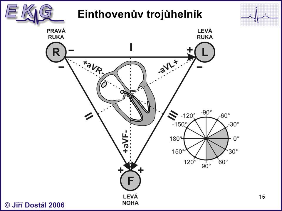 15 Einthovenův trojůhelník
