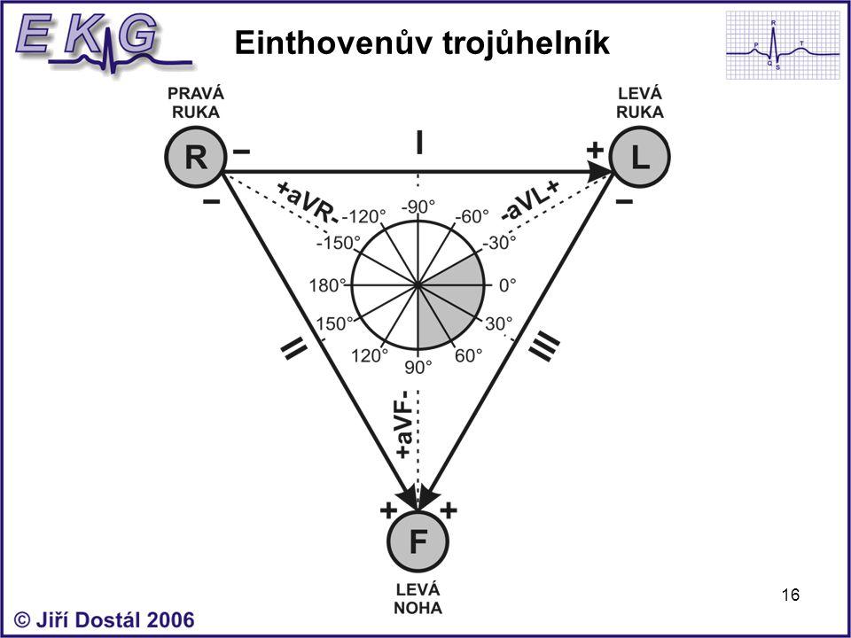 16 Einthovenův trojůhelník