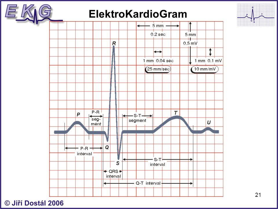 21 ElektroKardioGram
