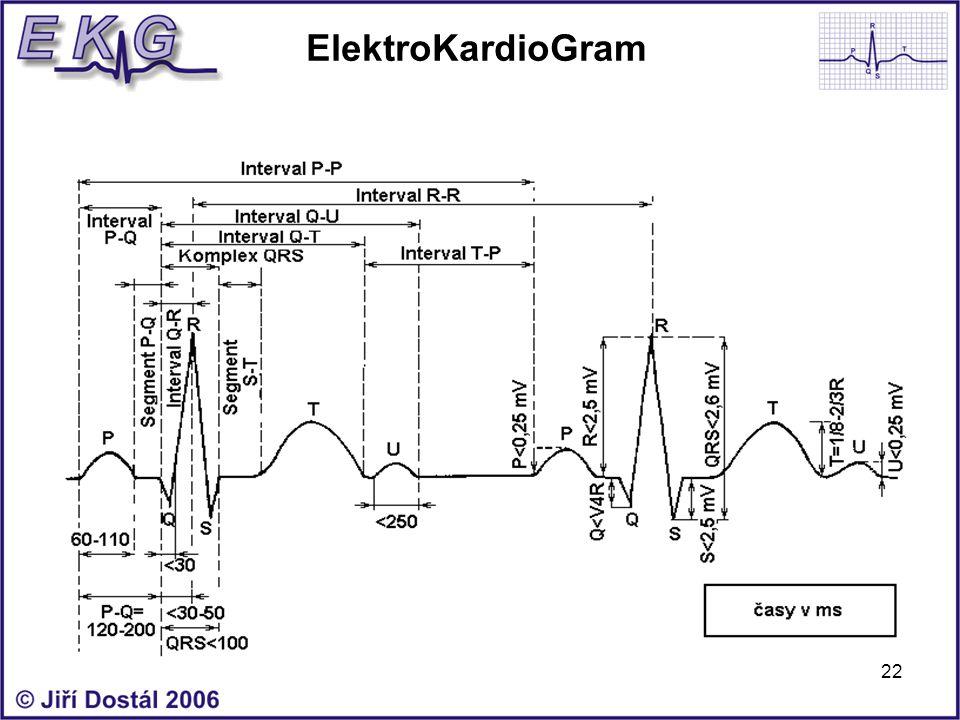 22 ElektroKardioGram