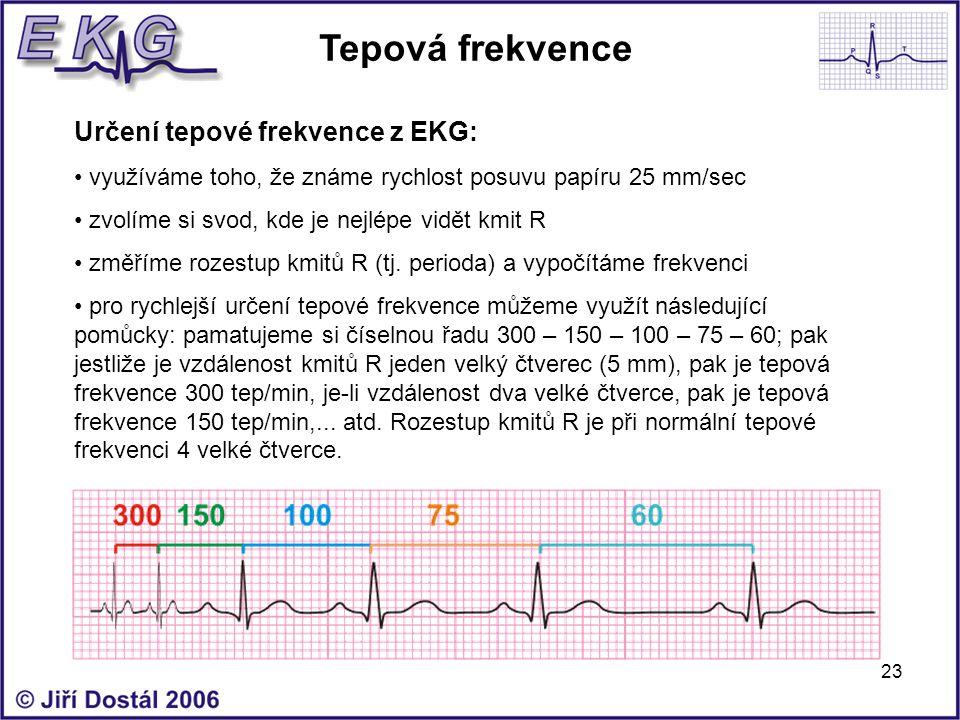 23 Tepová frekvence Určení tepové frekvence z EKG: využíváme toho, že známe rychlost posuvu papíru 25 mm/sec zvolíme si svod, kde je nejlépe vidět kmi