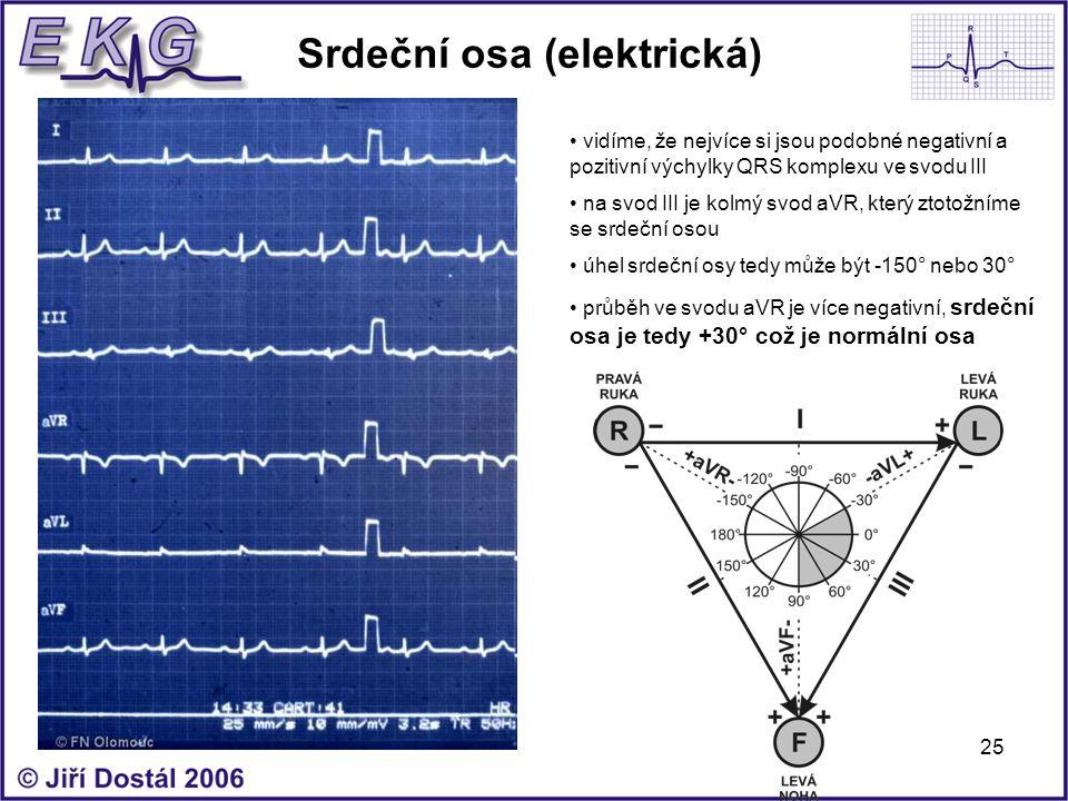 25 Srdeční osa (elektrická) vidíme, že nejvíce si jsou podobné negativní a pozitivní výchylky QRS komplexu ve svodu III na svod III je kolmý svod aVR,