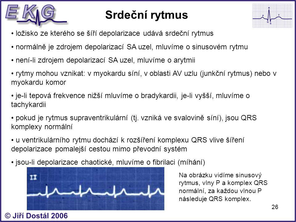 26 Srdeční rytmus ložisko ze kterého se šíří depolarizace udává srdeční rytmus normálně je zdrojem depolarizací SA uzel, mluvíme o sinusovém rytmu nen