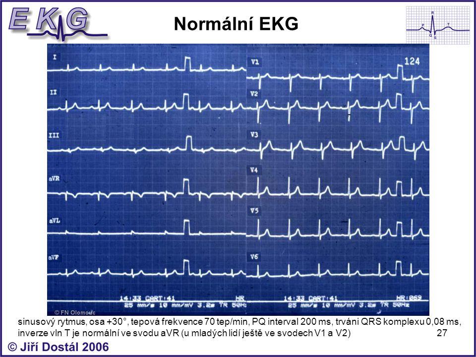 27 Normální EKG sinusový rytmus, osa +30°, tepová frekvence 70 tep/min, PQ interval 200 ms, trváni QRS komplexu 0,08 ms, inverze vln T je normální ve