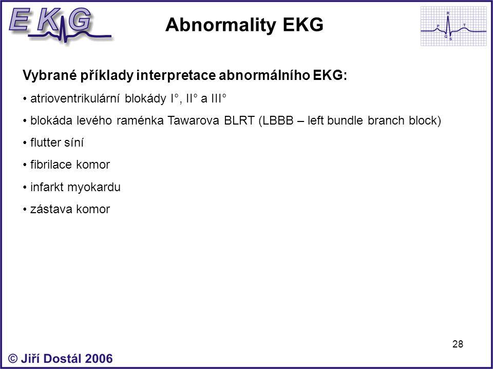 28 Abnormality EKG Vybrané příklady interpretace abnormálního EKG: atrioventrikulární blokády I°, II° a III° blokáda levého raménka Tawarova BLRT (LBB