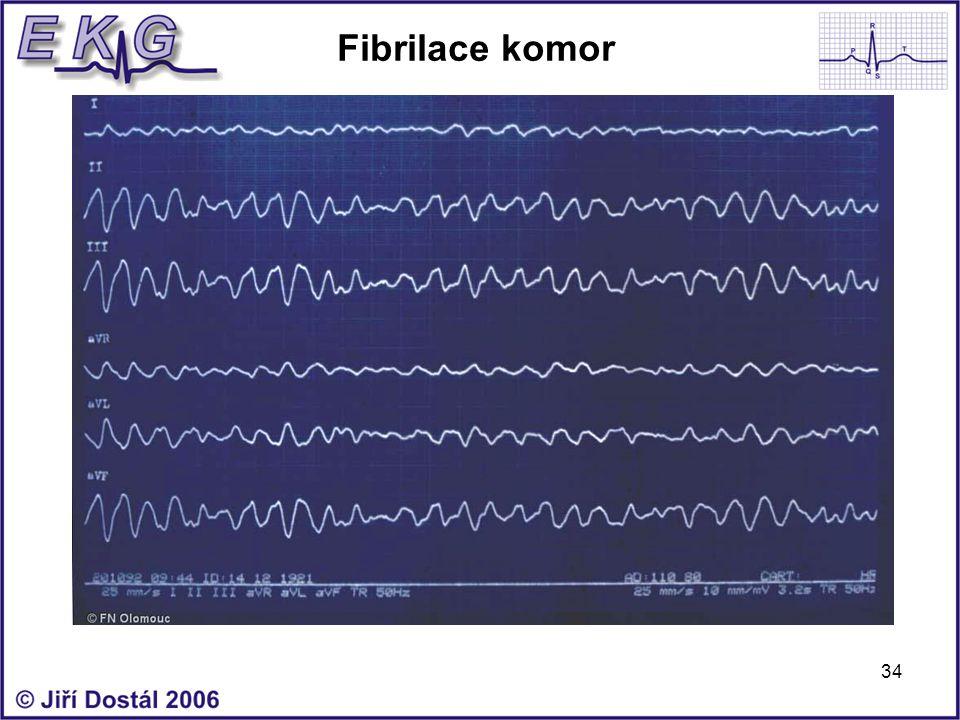 34 Fibrilace komor