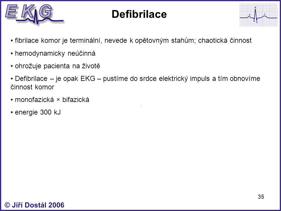 35 Defibrilace fibrilace komor je terminální, nevede k opětovným stahům; chaotická činnost hemodynamicky neúčinná ohrožuje pacienta na životě Defibril