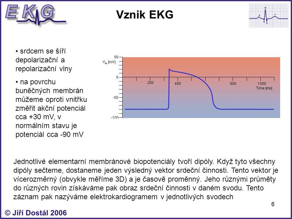 6 Vznik EKG srdcem se šíří depolarizační a repolarizační vlny na povrchu buněčných membrán můžeme oproti vnitřku změřit akční potenciál cca +30 mV, v