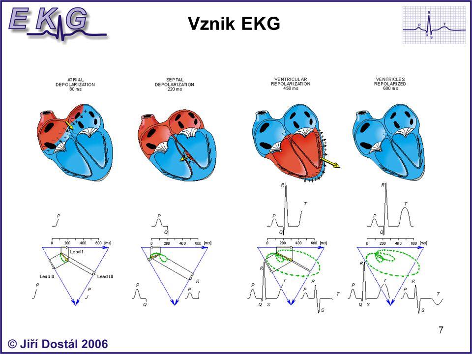 7 Vznik EKG