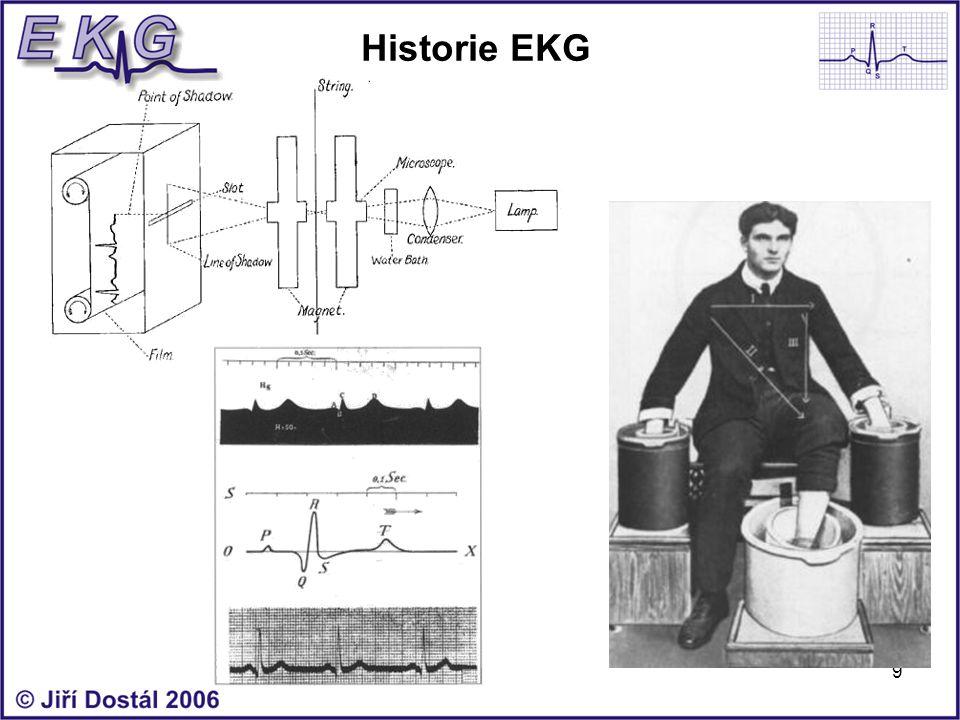 9 Historie EKG