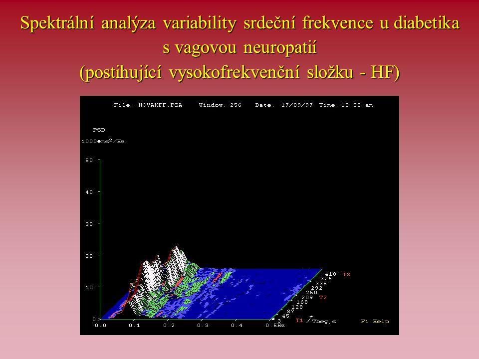 Spektrální analýza variability srdeční frekvence u diabetika s vagovou neuropatií (postihující vysokofrekvenční složku - HF)