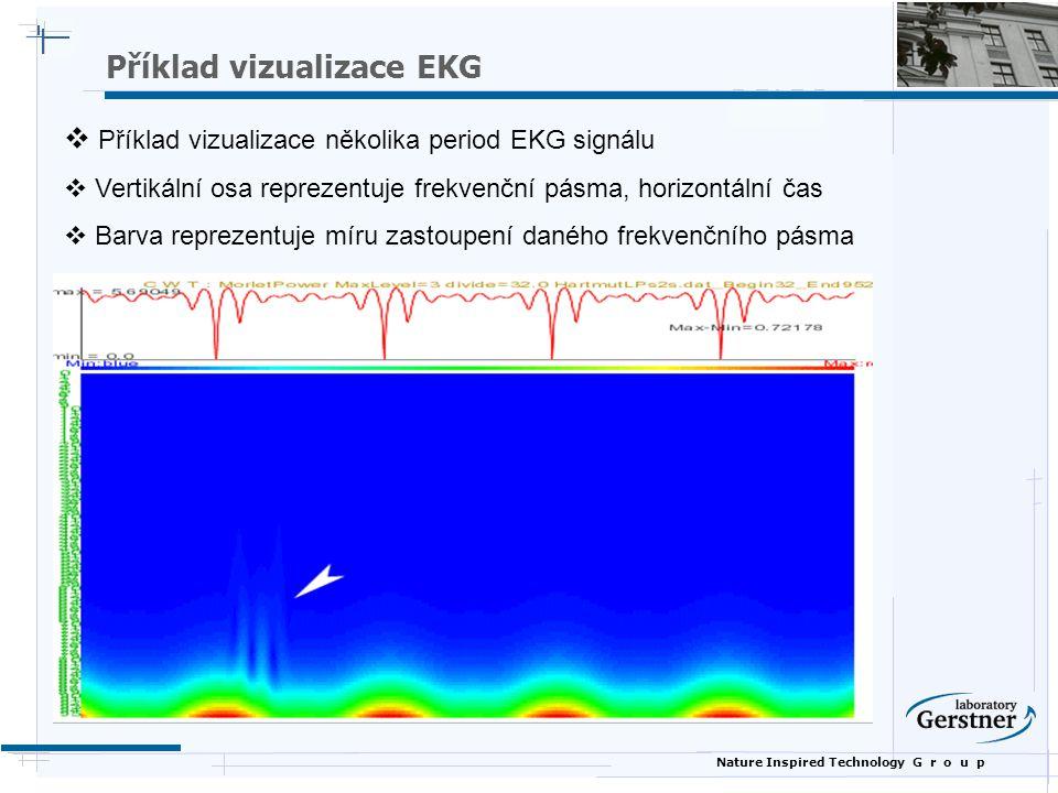 Nature Inspired Technology G r o u p  Příklad vizualizace několika period EKG signálu  Vertikální osa reprezentuje frekvenční pásma, horizontální ča